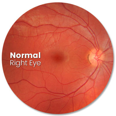 High intensity image of normal eye